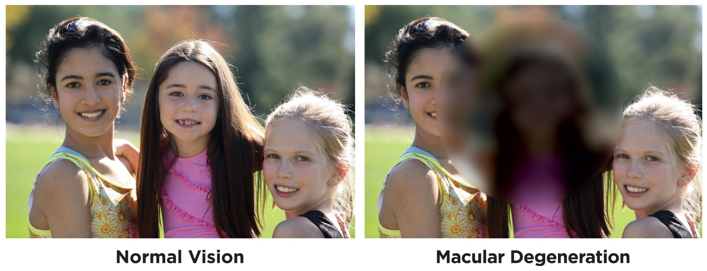 MacularDegeneration-copy
